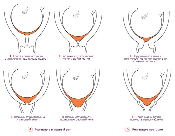 Т образный внутренний зев при беременности